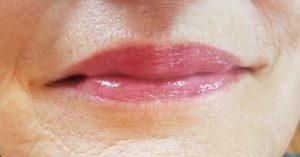 healed full lip color